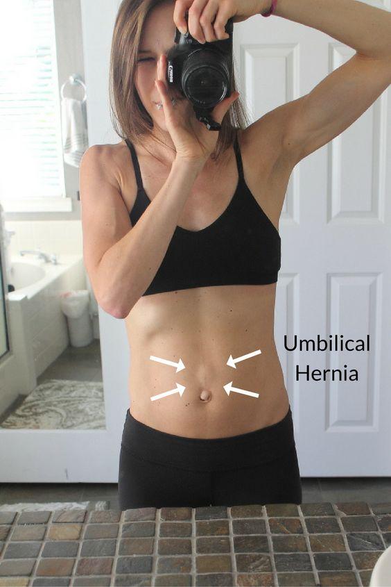 Helpful For Hernia